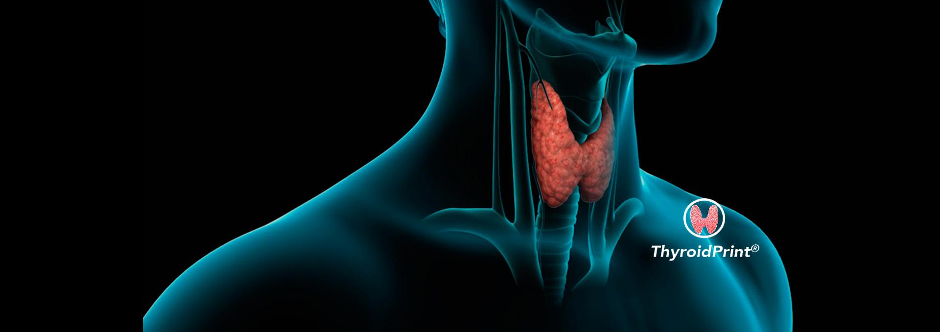 ThyroidPrint: el test que identifica con alta Exactitud si un nódulo tiroideo es benigno o no