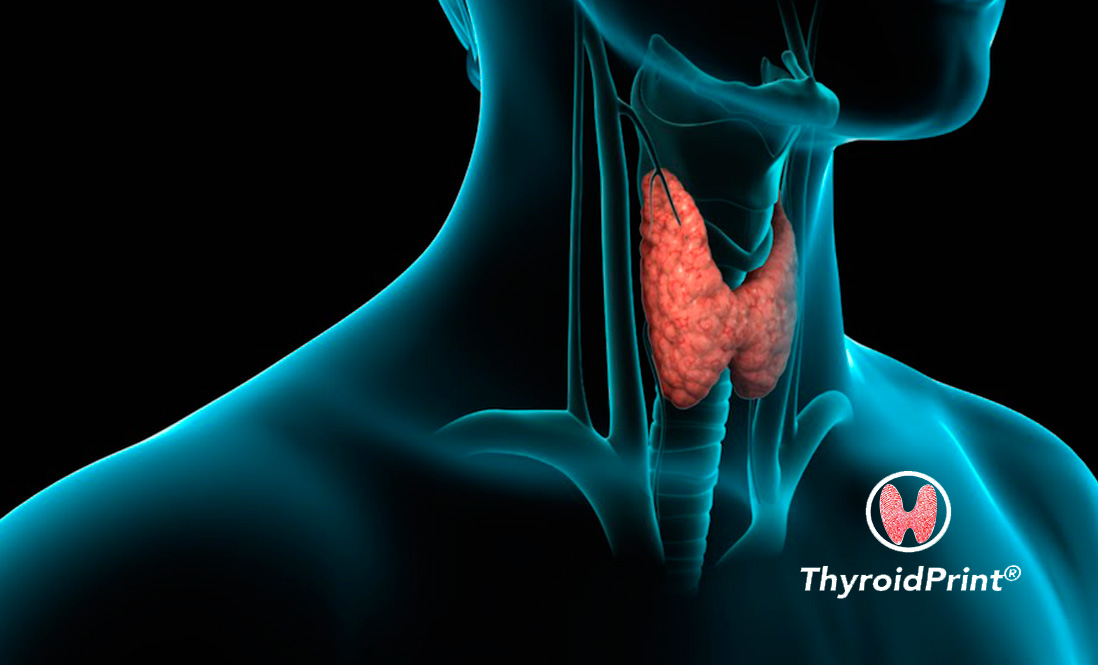 ThyroidPrint: the test that identifies with high accuracy whether a thyroid nodule is benign or not
